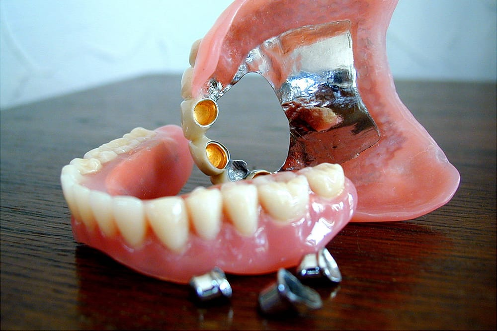 Reinigung der Zähne